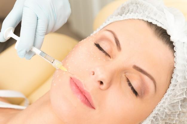 tratamiento estético a través de las agujas para mesoterapia