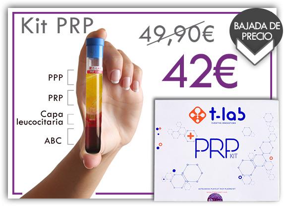 plasma rico en plaquetas PRP