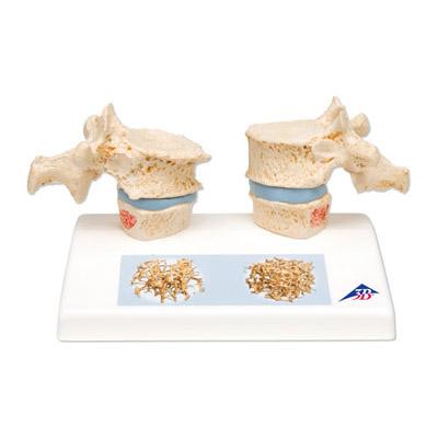 Modelo de osteoporosis | ENFERMEDADES DE LA COLUMNA VERTEBRAL ...